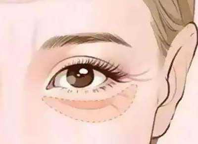 眼睛下面的皱纹 去除眼部皱纹的三个小妙招