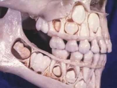 乳牙没掉又长新牙图片 儿童乳牙还没退